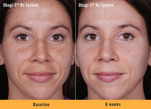 Obagi-C-Rx-System-Before-and-After