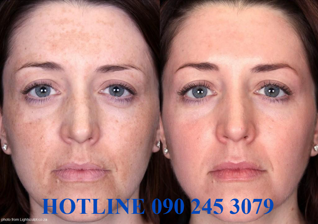 melasma-before-and-after-pic-from-lightsculpt-Copy-2-1024x723